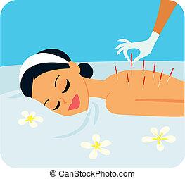 akupunktura, ilustracja