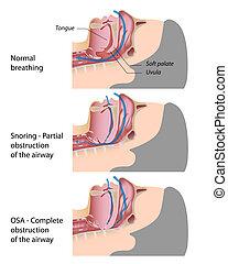 apnea, chrapanie, sen, eps10