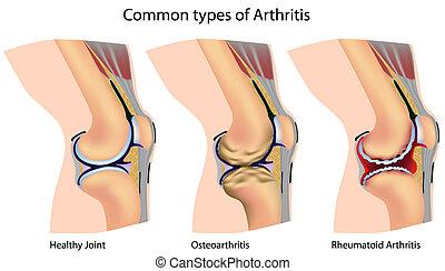 artretyzm, wspólny, typy
