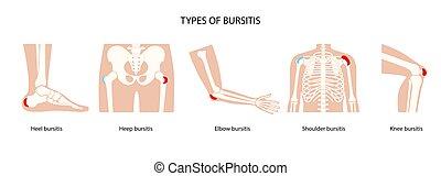 bursitis, ikony, komplet