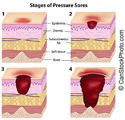 ciśnienie, gradacja, sores, eps8