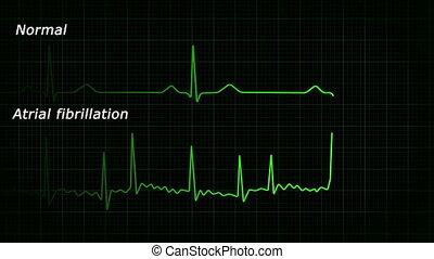 ecg, fibrillation, atrial, hd, pętla