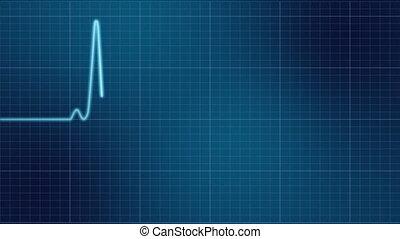 ekg, hydromonitor serca