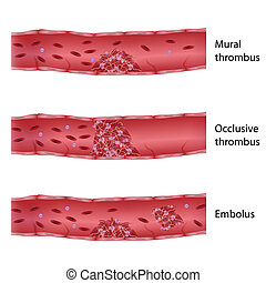 eps10, thrombosis, typy