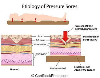 etiologia, ciśnienie, sores, eps8