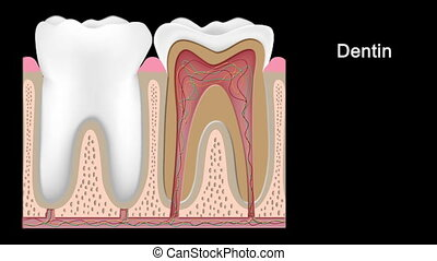 gradacja, upadek, hd, ząb