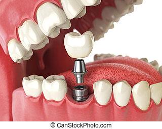 implant., stomatologiczny, concept., ludzki, albo, ząb, zęby, dentures.