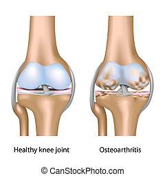 kolano, osteoarthritis, eps10, połączenie