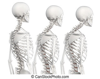 kręgosłup, 3, fazy, kyphotic