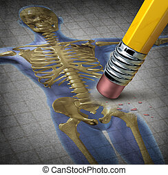 ludzki, osteoporosis