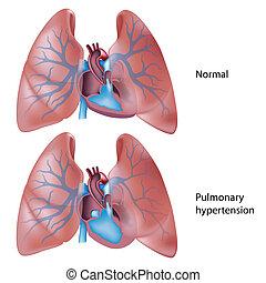 nadciśnienie, płucny, eps10