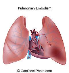 płucny, eps10, embolizm