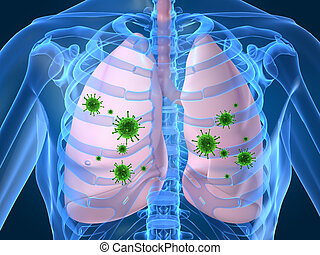 płuco, zakażenie