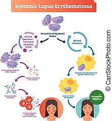 patient., toczeń, erythematosus, chory, naklejona etykietka, normalny, systemic, diagram
