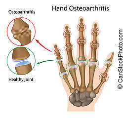 ręka, osteoarthritis, eps8