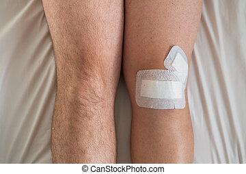samiec, operacja kolana, po, związywał taśmą, laparoscopic, szczelnie-do góry, minisk, taśma, nogi