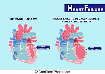 serce, pojęcie, brak