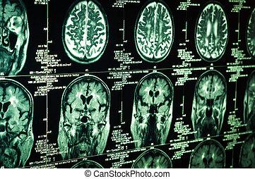 skandować, bardzo, mózg, zielony, ludzki, ostro
