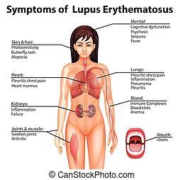 toczeń, erythematosus, ludzka anatomia, symptomy