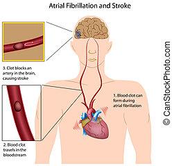 uderzenie, eps8, atrial, fibrillation