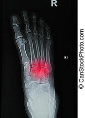 wizerunek, bolesny, albo, krzywda, stopa, prześwietla