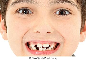 zamknięcie, brakujący, do góry, zęby